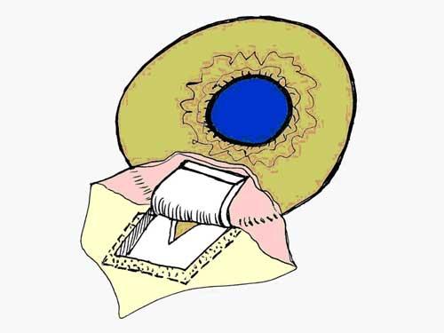 лечение глаукомы после операции