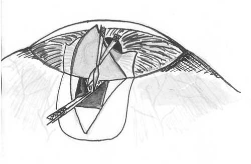 Рис. 5. Схема подтягивания радужки в рану и выполнения иридотомии.  Базальный лоскут радужки выворачивают пигментным...